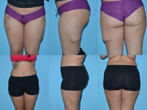 deformity correction lipo