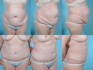 marshallcosmetique abdominoplasty1