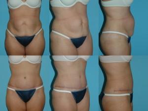 marshallcosmetique abdominoplasty10