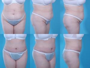 marshallcosmetique abdominoplasty11