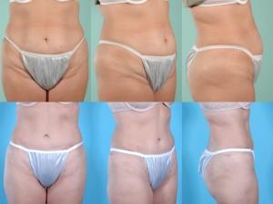 marshallcosmetique abdominoplasty12
