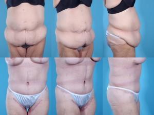 marshallcosmetique abdominoplasty13