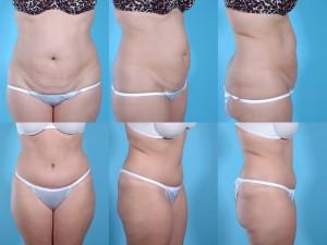 marshallcosmetique abdominoplasty14