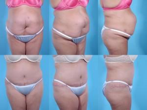 marshallcosmetique abdominoplasty15