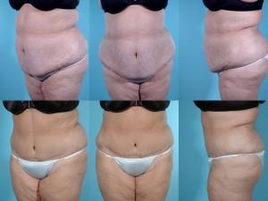 marshallcosmetique abdominoplasty16