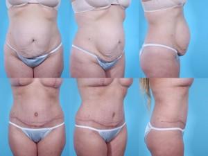 marshallcosmetique abdominoplasty17