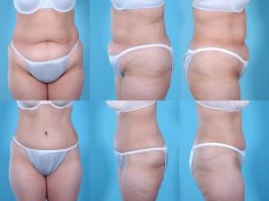 marshallcosmetique abdominoplasty18