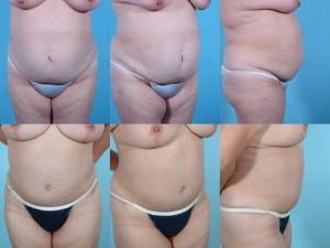 marshallcosmetique abdominoplasty2