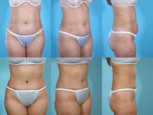 marshallcosmetique abdominoplasty21
