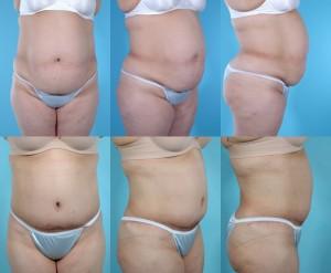 marshallcosmetique abdominoplasty22