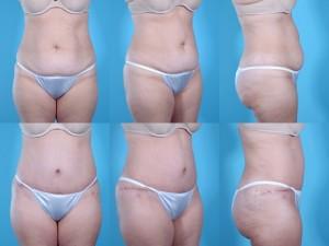marshallcosmetique abdominoplasty23