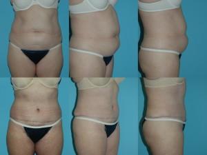marshallcosmetique abdominoplasty24