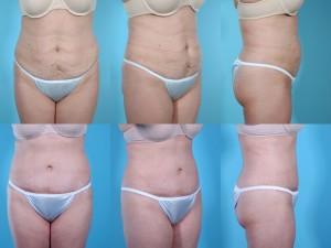 marshallcosmetique abdominoplasty5