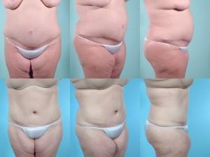 marshallcosmetique abdominoplasty6