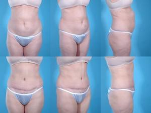 marshallcosmetique abdominoplasty7