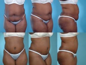 marshallcosmetique abdominoplasty8