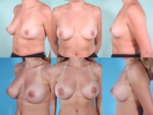 marshallcosmetique breastaug1