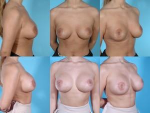 marshallcosmetique breastaug10