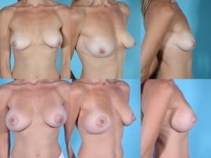 marshallcosmetique breastaug12