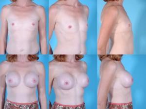 marshallcosmetique breastaug13