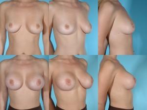 marshallcosmetique breastaug14