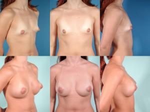 marshallcosmetique breastaug15