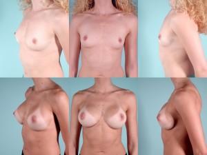 marshallcosmetique breastaug16