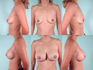 marshallcosmetique breastaug19