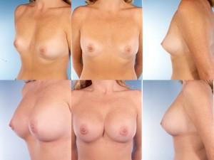 marshallcosmetique breastaug2