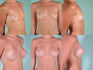 marshallcosmetique breastaug20