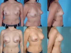 marshallcosmetique breastaug21