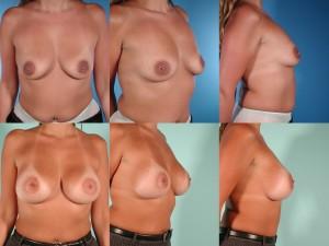 marshallcosmetique breastaug3