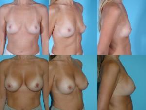 marshallcosmetique breastaug4