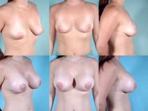 marshallcosmetique breastaug5