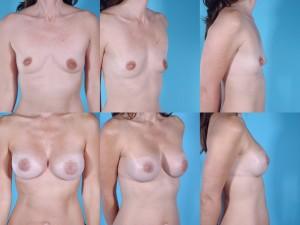 marshallcosmetique breastaug6