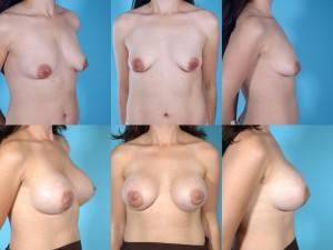 marshallcosmetique breastaug7