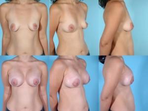 marshallcosmetique breastaug8