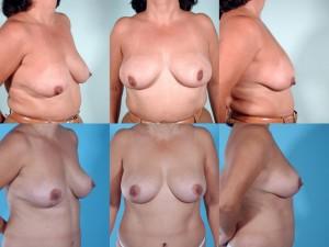 marshallcosmetique breastlift1