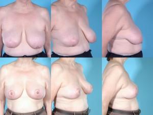 marshallcosmetique breastlift2