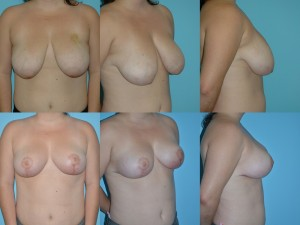 marshallcosmetique breastlift3