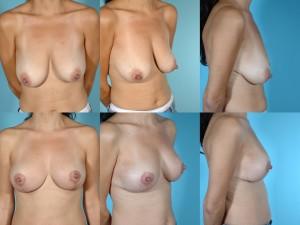 marshallcosmetique breastlift4
