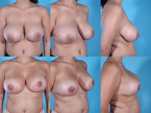marshallcosmetique breastlift5