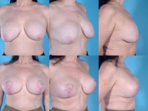 marshallcosmetique breastlift6