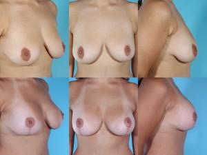 marshallcosmetique breastlift7